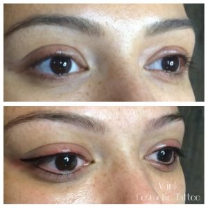 before and after Eyeliner Tattoo Melbourne