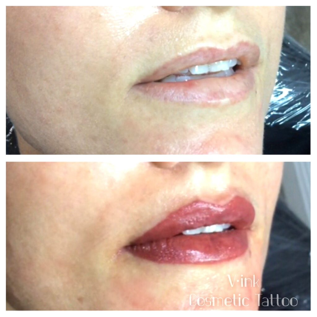 Before and After Lip Tattoo Melbourne