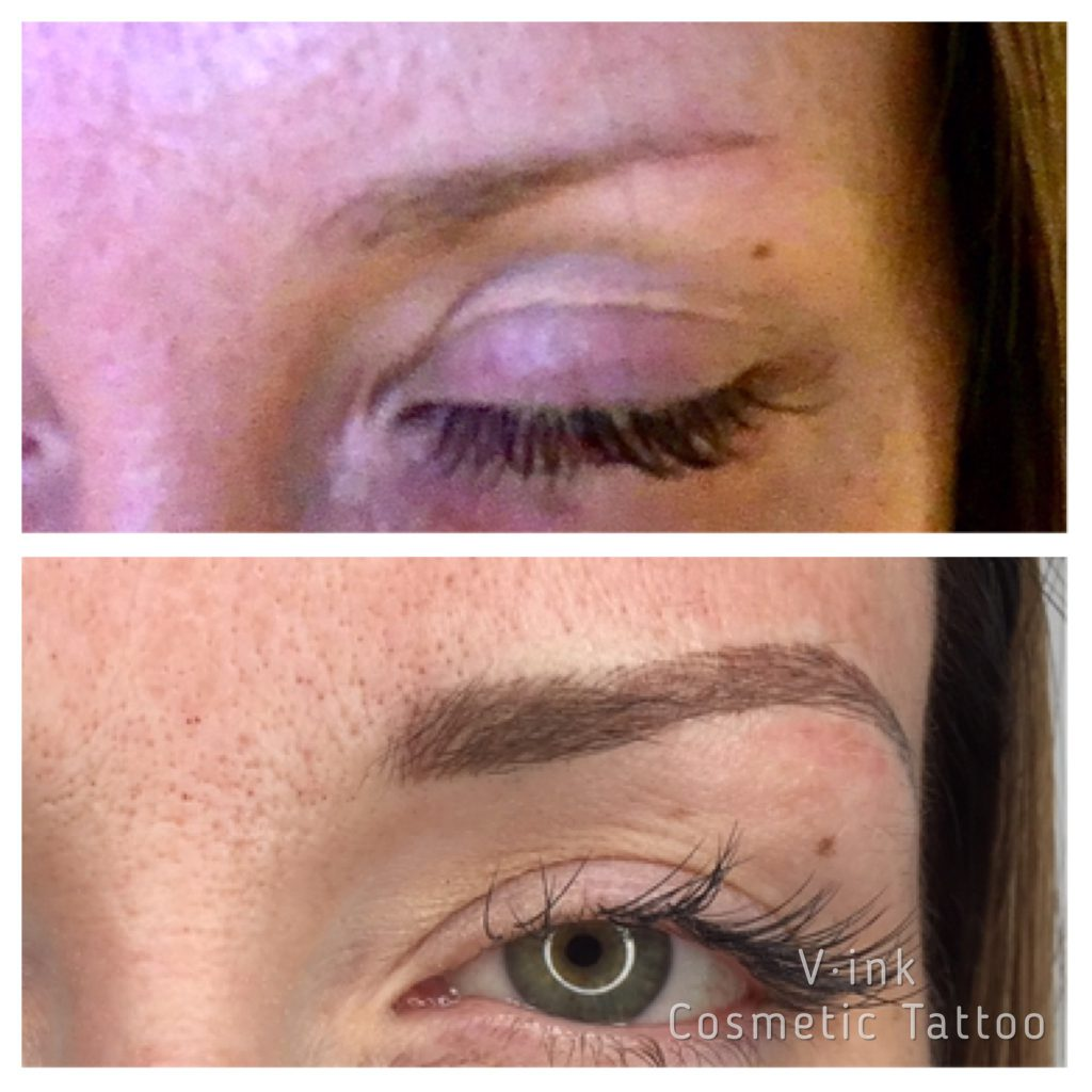 Before an After Feathering Eyebrow Tattoo Melbourne