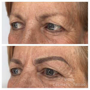 Before an After Eyebrow Tattoo Melbourne