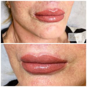 Lips Tattoo, Lip filler, young Lips