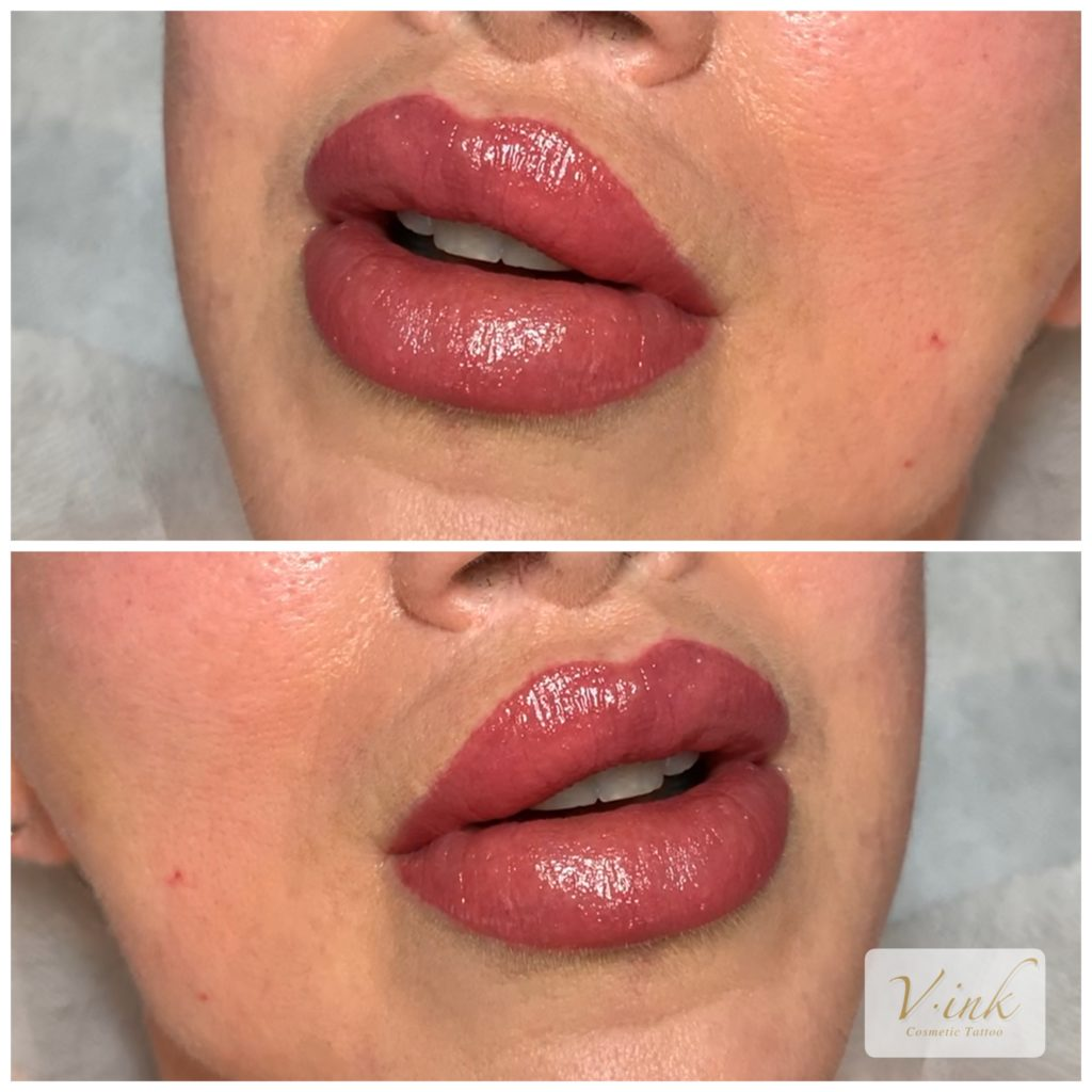Lips Tattoo in Melbourne, Lips Filler, Fuller Lips, Beautiful Lips