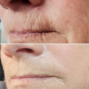 Plasmedic, Plasma skin Tightening, Wrinkle Reduction St KIlda, Wrinkle reduction Brighton, Wrinkle reduction Elsternwick