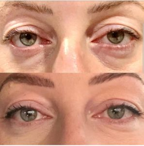 Plasmedic, Plasma skin Tightening, Wrinkle Reduction St KIlda, Wrinkle reduction Brighton, Wrinkle reduction Elsternwick, Blepharoplasty St Kilda, Blepharoplasty Elsternwick, Blepharoplasty Melbourne